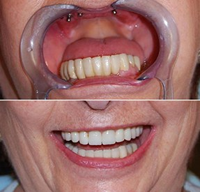 Before and After Dental Implants Buenos Aires