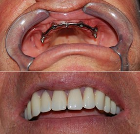 Before and After Dentures Buenos Aires