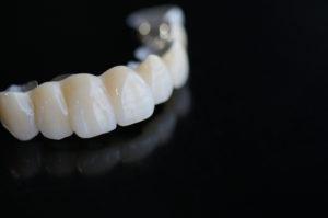 Dental Bridges vs. Dental Implants Santa Rosa