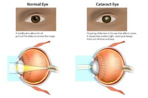 Cataract surgery in Leland, NC