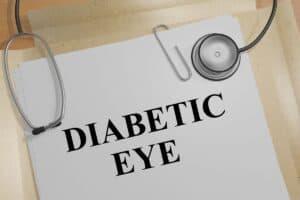 Diabetic Eye Disease Treatment in Wilmington, NC