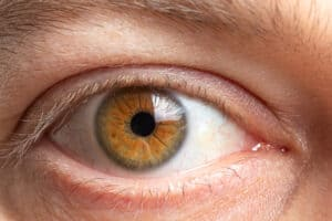 Ocular surface disease