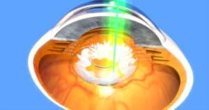 YAG laser for cataracts