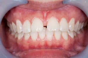 Teeth straightening treatments Sylvania