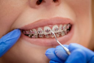 Different types of braces for straight teeth Sylvania
