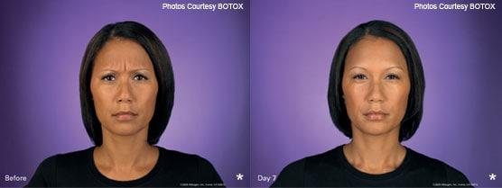 Botox Injection Patient Photos Jupiter, FL