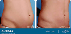 Trusculpt Patient Before After Jupiter, FL
