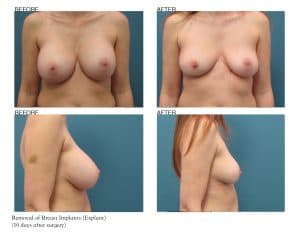 Breast Implant Removal Patient Photos Jupiter, FL