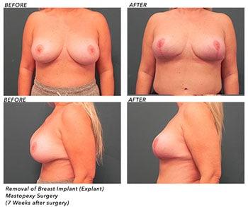 Breast Explant Patient Before After Jupiter, FL