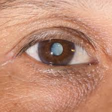 Reduce Your Risk of Cataracts