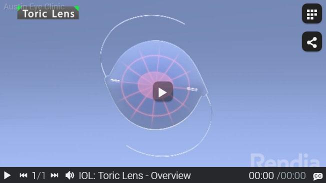 Austin toric lens implant