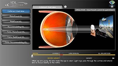 Austin intraocular lens implant