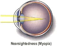 Austin TX nearsightedness correction
