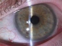 Austin TX DSAEK corneal transplant surgery