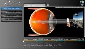 Austin tx intraocular implant