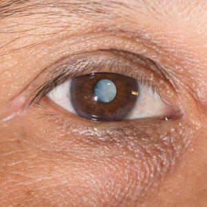 Cataract surgery options Austin, TX