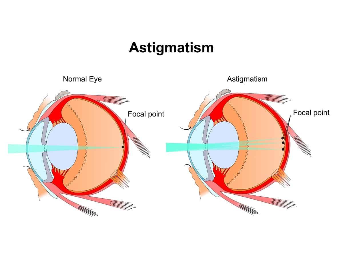 Astigmatism: Causes & Treatment Options in Austin, TX