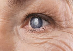 5 Things about Glaucoma