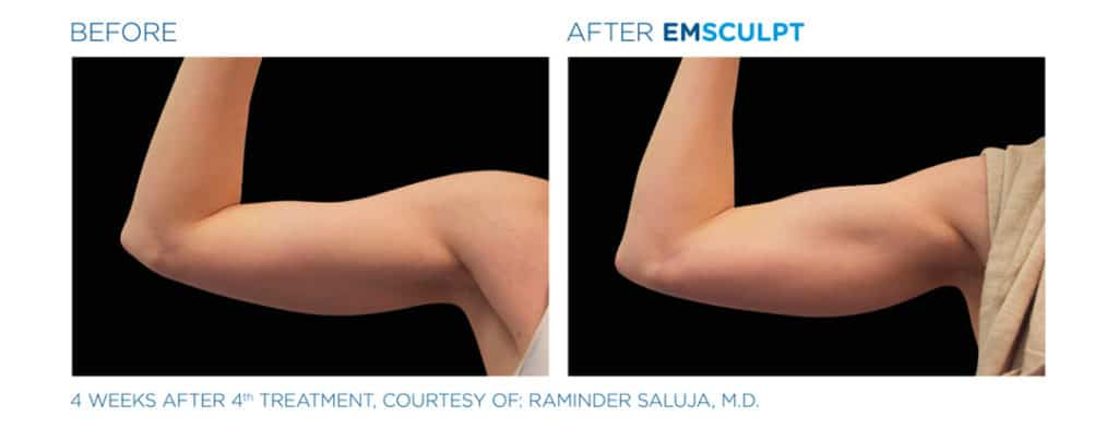 Emsculpt_Bicep Before & After