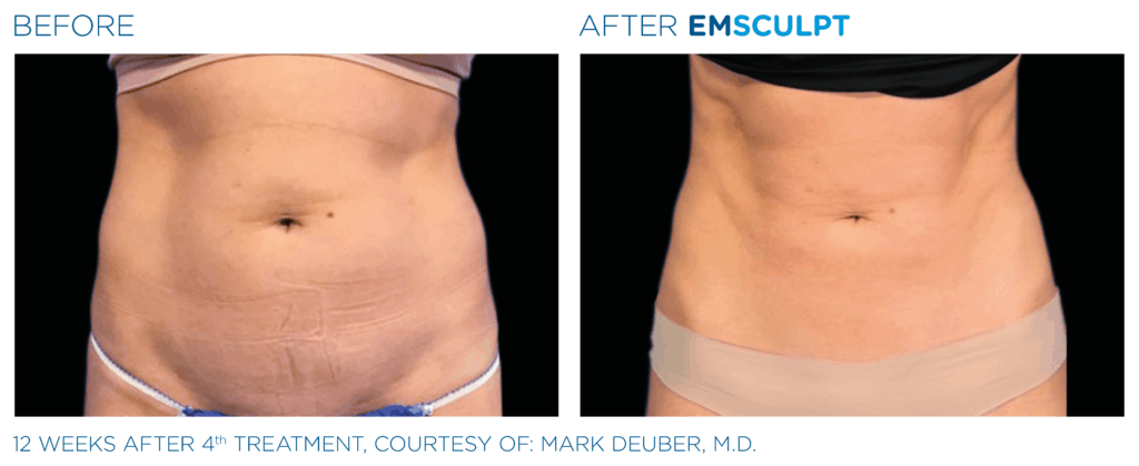 Emsculpt_Before & After Female
