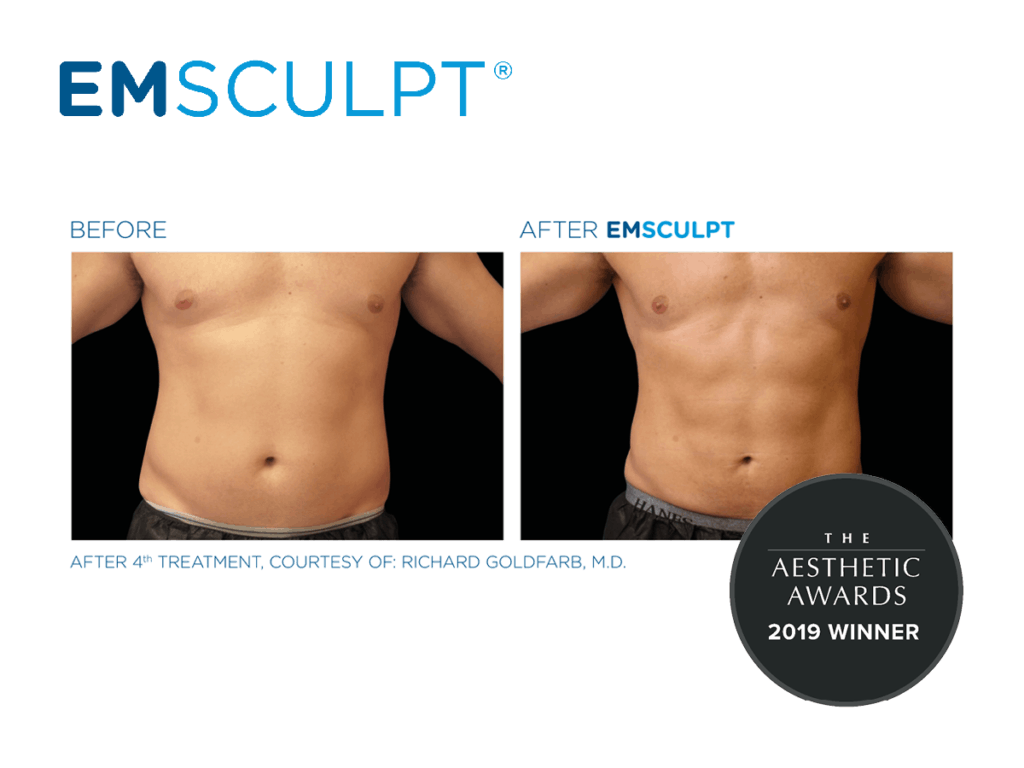 Emsculpt_Before & After Male