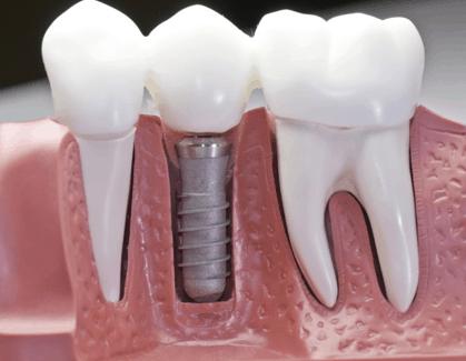 Cosmetic dentistry San Jose
