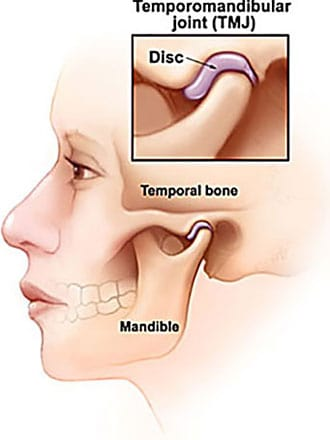 Diagram of facial parts involved in TMJ