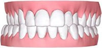 Cross dental bite Example Image