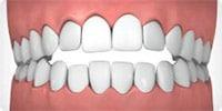 Open-bite Example Image