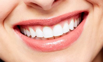 Full Smile Restoration in San Jose