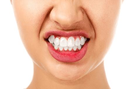 Teeth grinding relief San Jose