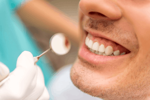 Dental inlays San Jose