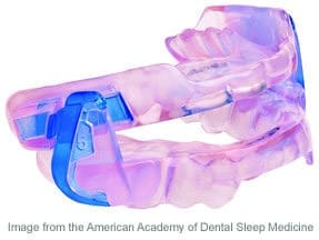 Oral appliance therapy in San Jose