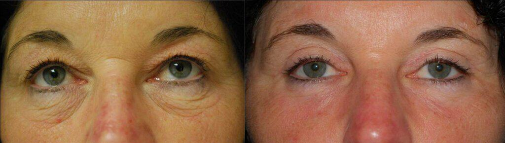 Before and after Laser Assisted Blepharoplasty