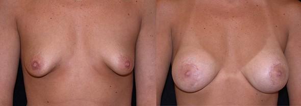 Unusually Shaped Breasts Boston