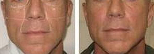 Anti-Aging Skin Care For Men