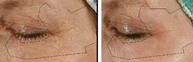 Revision Eyelid Surgery Boston
