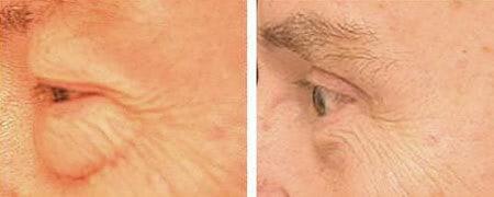 Boston Eyelid Surgery