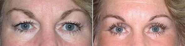 Eyelid Surgery Boston