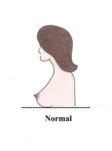Do I Need a Breast Lift?