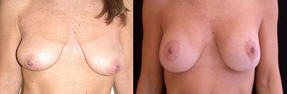Before and After Breast Lift Boston