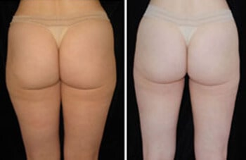 Hip Liposuction Boston