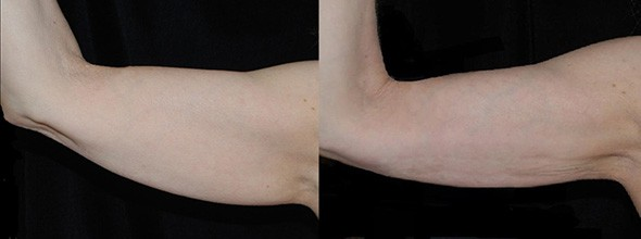 Arm Liposuction Boston