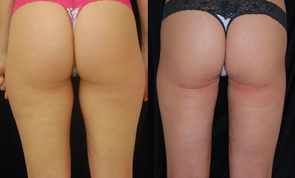 Thigh Liposuction Boston