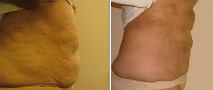 Liposuction Surgery Boston
