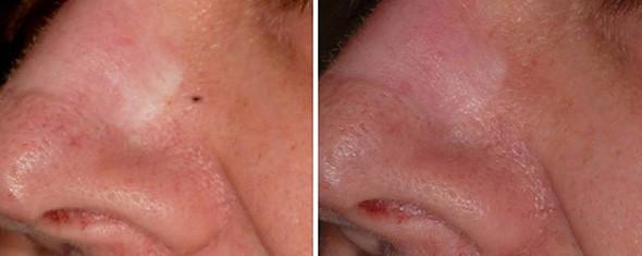Laser Scar Removal Treatment Boston