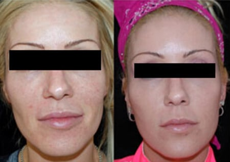 Facial Filler Injections Boston