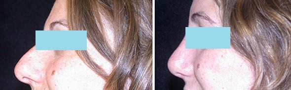 Nose Surgery Boston