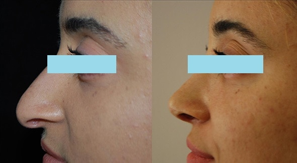 Before and After Open Rhinoplasty Boston