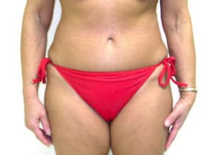 Tummy Tuck Before and After Pictures Virginia Beach, VA